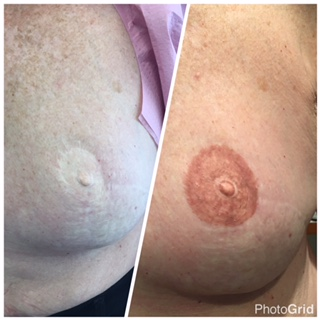 Micropigmentation for Areola Reconstruction