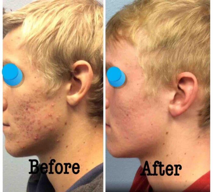 Isotretinoin (Accutane) Post 5 months